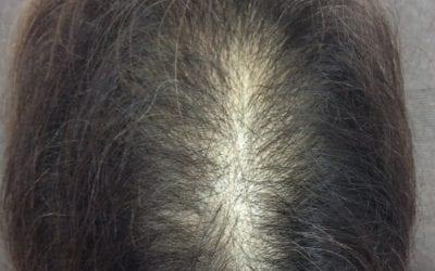 発毛事例① 「60代女性 びまん性脱毛症」